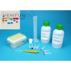 Kit electroforesis en gel de agarosa I V-44541